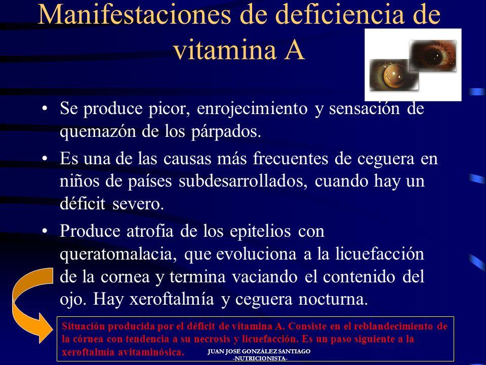 Manifestaciones de deficiencia de vitamina A