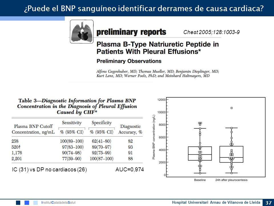 ¿Puede el BNP sanguíneo identificar derrames de causa cardiaca