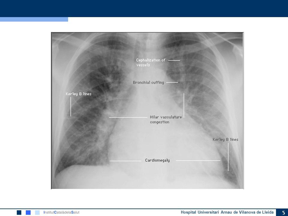 Radiografía de tórax en la IC