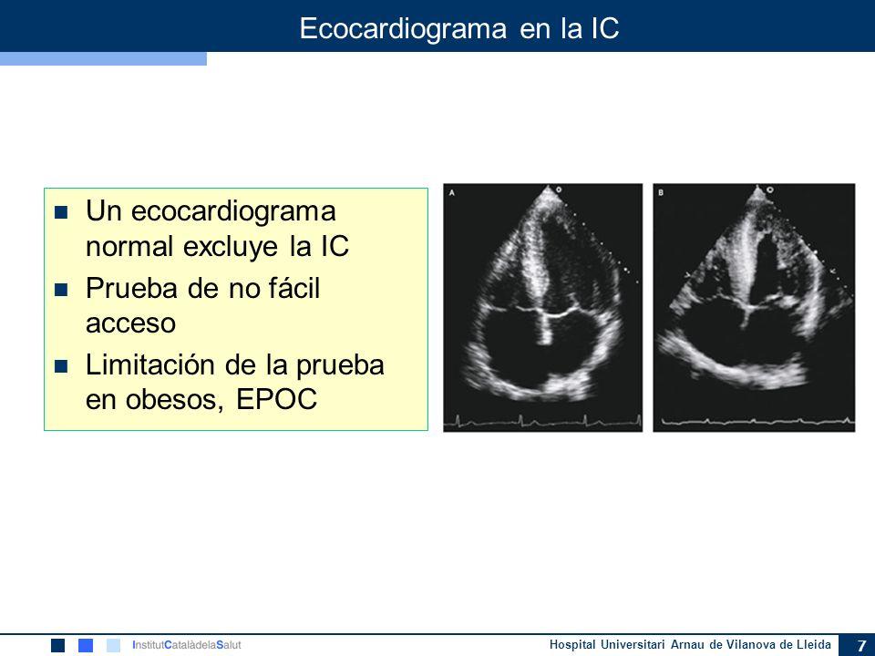 Ecocardiograma en la IC