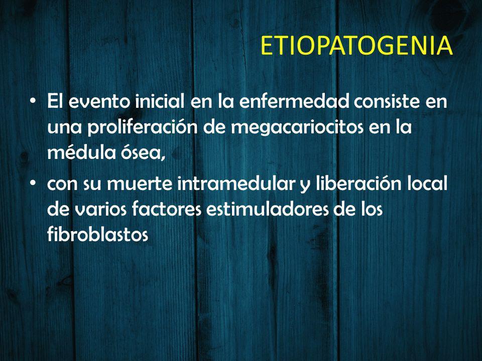 ETIOPATOGENIA El evento inicial en la enfermedad consiste en una proliferación de megacariocitos en la médula ósea,