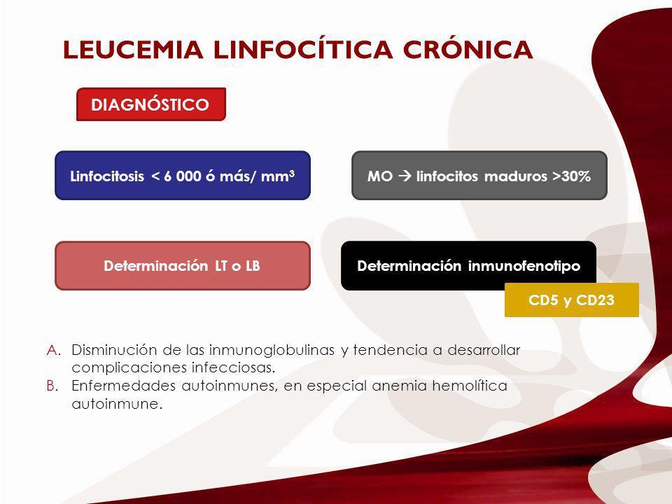 Linfocitosis < 6 000 ó más/ mm3 MO  linfocitos maduros >30%