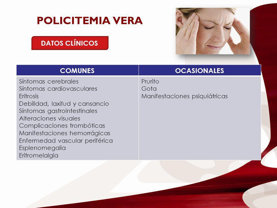 POLICITEMIA VERA DATOS CLÍNICOS COMUNES OCASIONALES