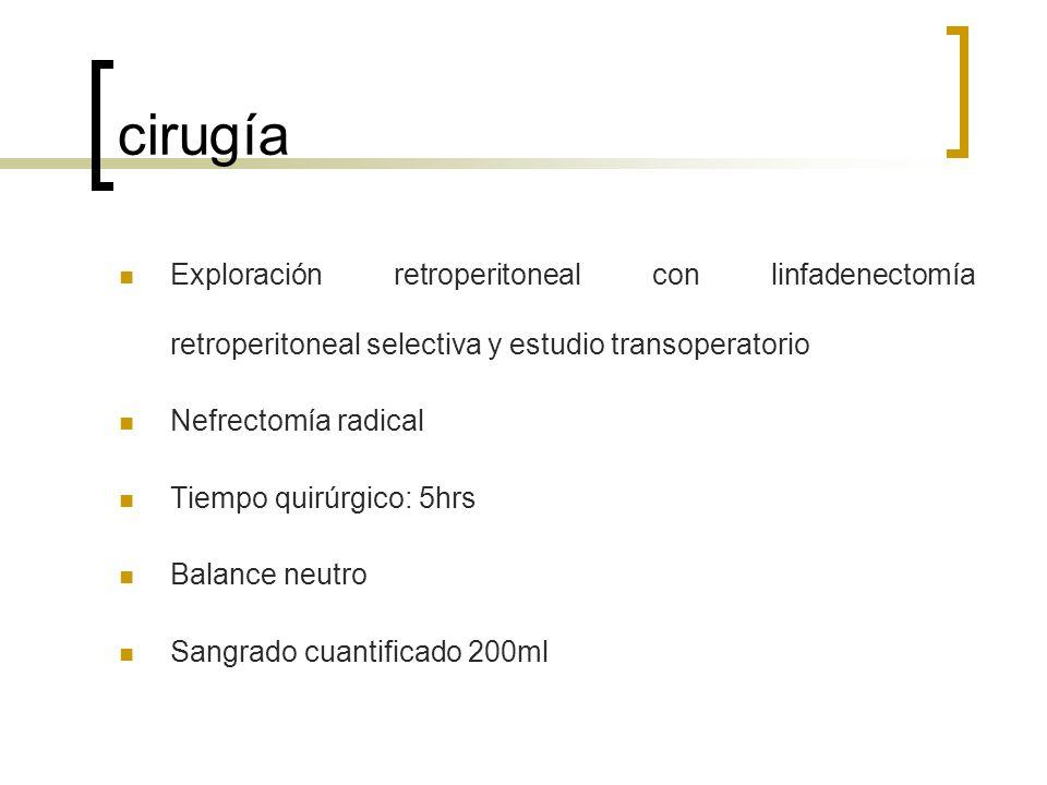 cirugía Exploración retroperitoneal con linfadenectomía retroperitoneal selectiva y estudio transoperatorio.