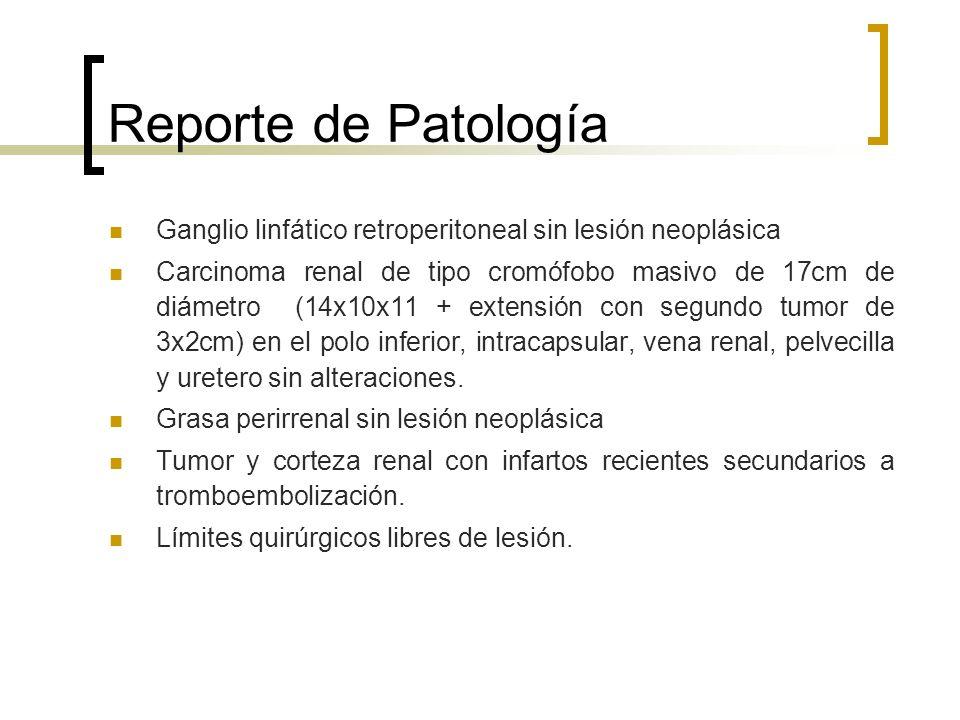 Reporte de Patología Ganglio linfático retroperitoneal sin lesión neoplásica.