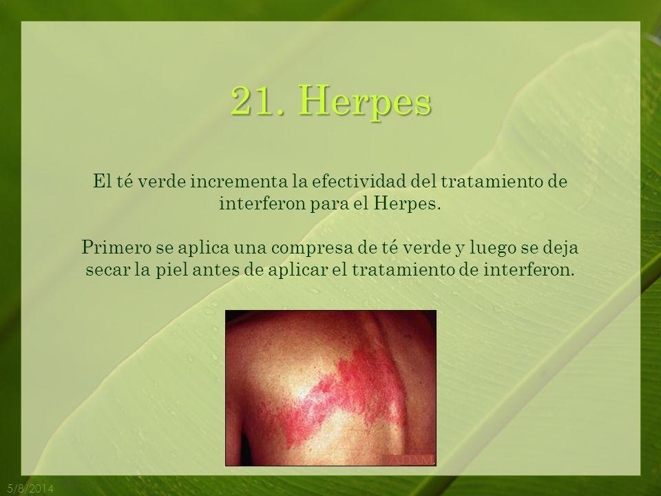 21. Herpes El té verde incrementa la efectividad del tratamiento de interferon para el Herpes.