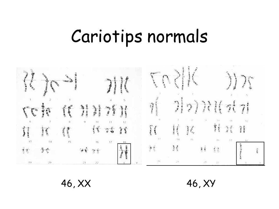 Cariotips normals 46, XX 46, XY