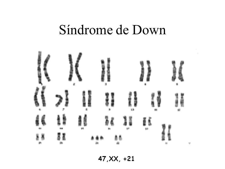 Síndrome de Down 47,XX, +21