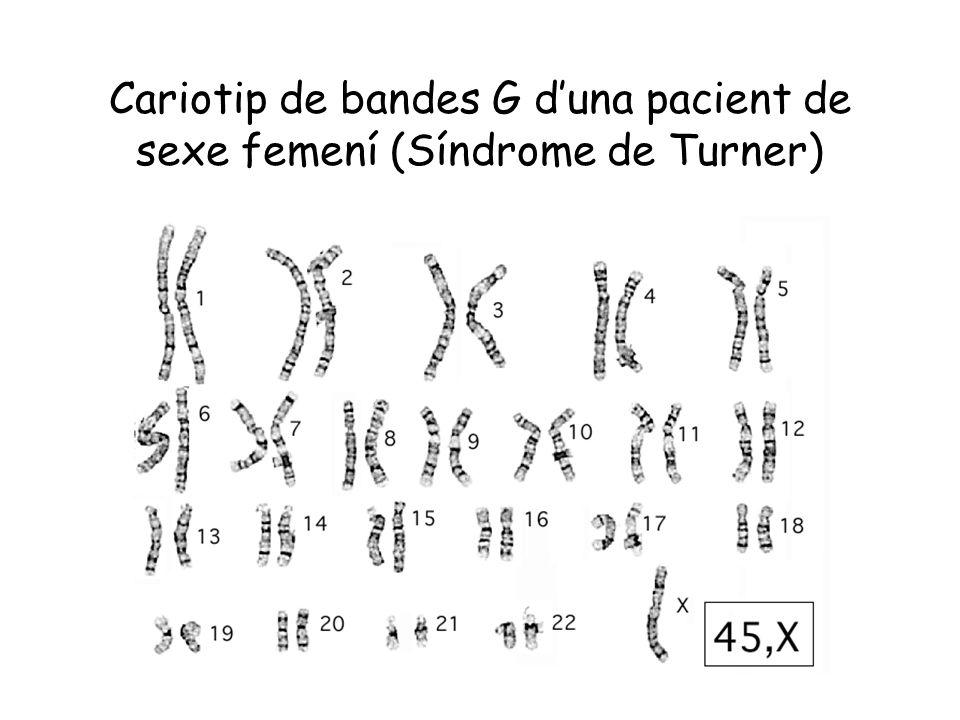 Cariotip de bandes G d'una pacient de sexe femení (Síndrome de Turner)