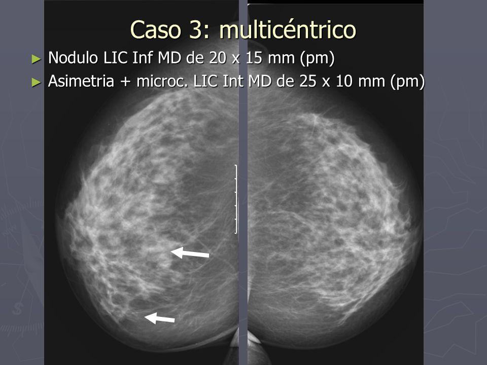Caso 3: multicéntrico Nodulo LIC Inf MD de 20 x 15 mm (pm)
