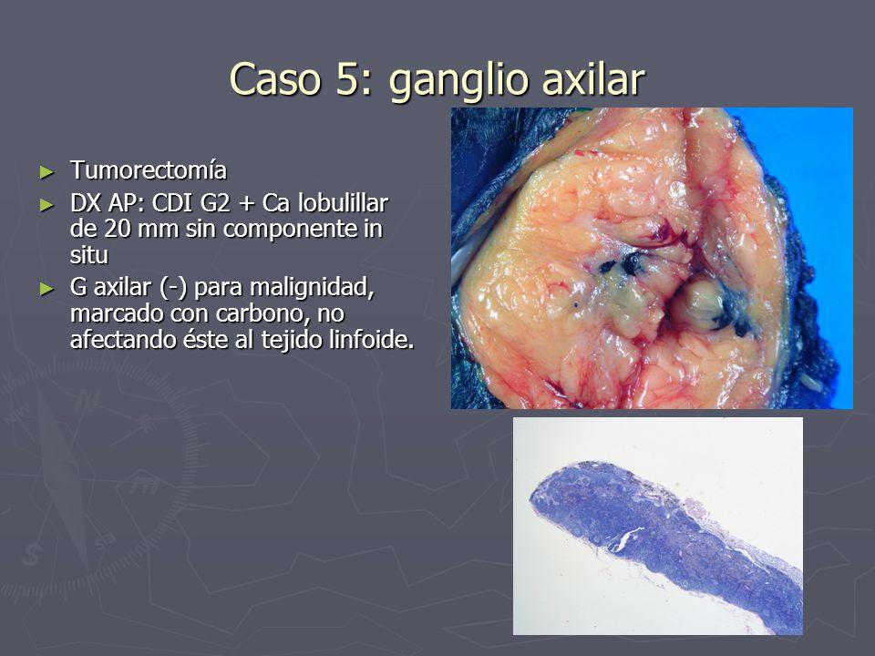Caso 5: ganglio axilar Tumorectomía