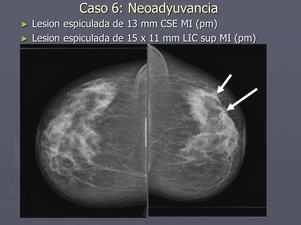 Caso 6: Neoadyuvancia Lesion espiculada de 13 mm CSE MI (pm)