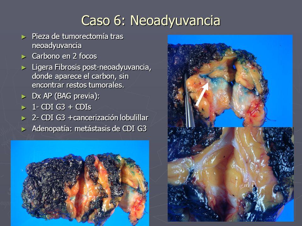 Caso 6: Neoadyuvancia Pieza de tumorectomía tras neoadyuvancia