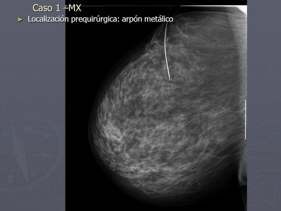 Caso 1 –MX Localización prequirúrgica: arpón metálico