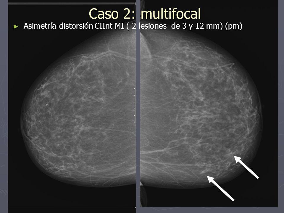 Caso 2: multifocal Asimetría-distorsión CIInt MI ( 2 lesiones de 3 y 12 mm) (pm)