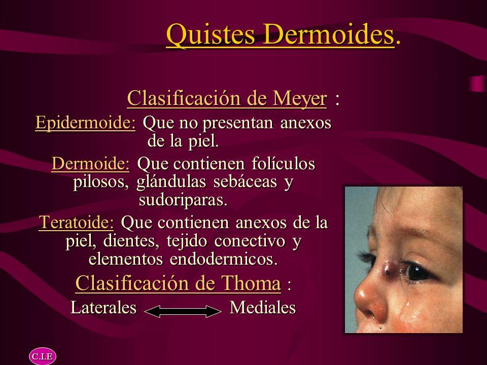 Quistes Dermoides. Clasificación de Meyer : Clasificación de Thoma :