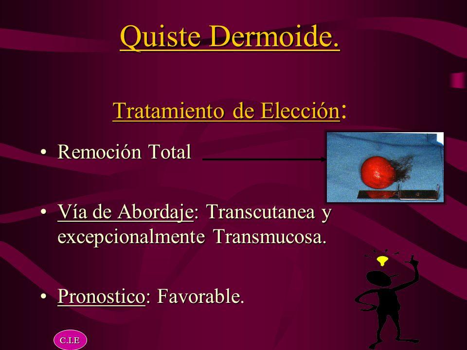 Quiste Dermoide. Tratamiento de Elección: