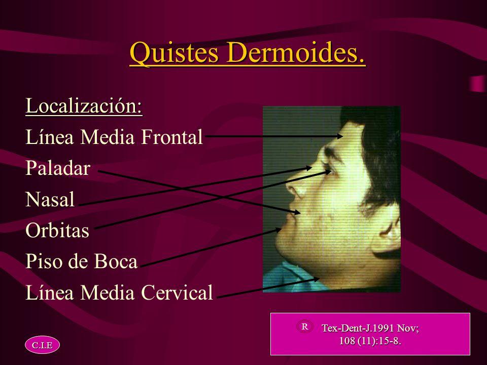 Quistes Dermoides. Localización: Línea Media Frontal Paladar Nasal