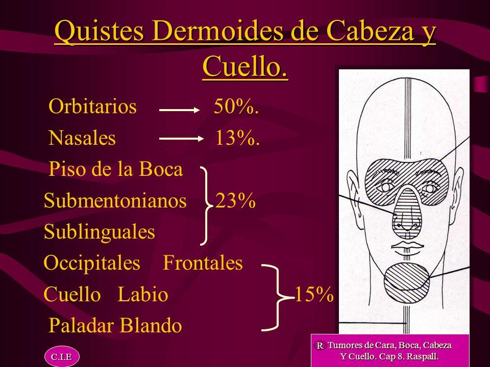 Quistes Dermoides de Cabeza y Cuello.