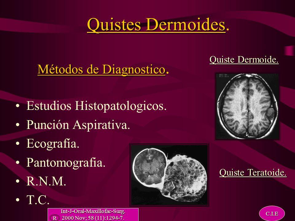 Quistes Dermoides. Métodos de Diagnostico.