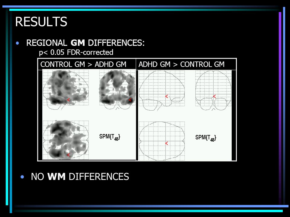 RESULTS NO WM DIFFERENCES REGIONAL GM DIFFERENCES:
