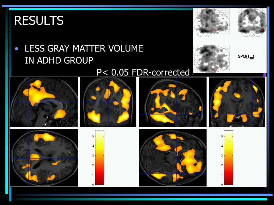 RESULTS LESS GRAY MATTER VOLUME IN ADHD GROUP P< 0.05 FDR-corrected