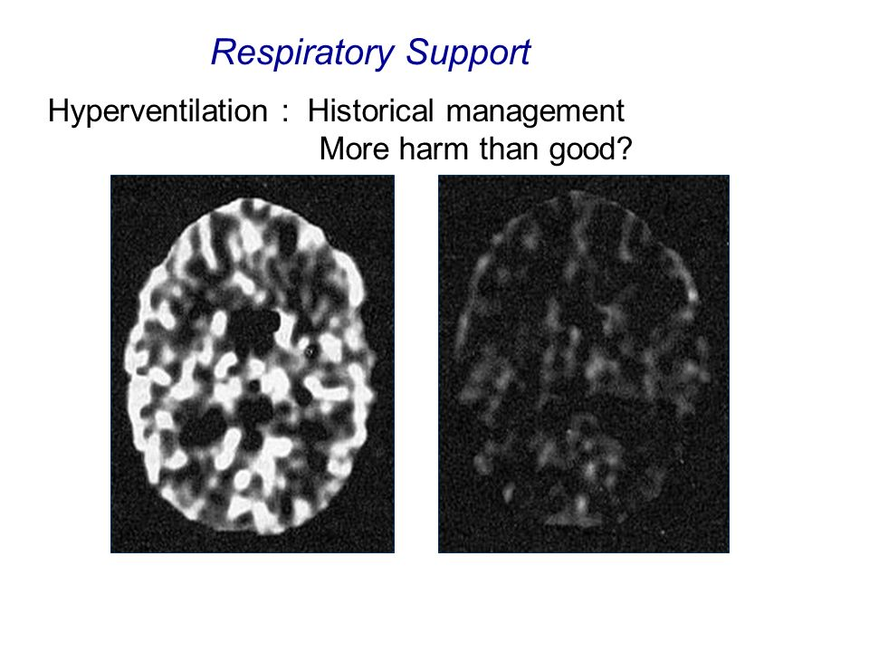 Respiratory Support Hyperventilation : Historical management