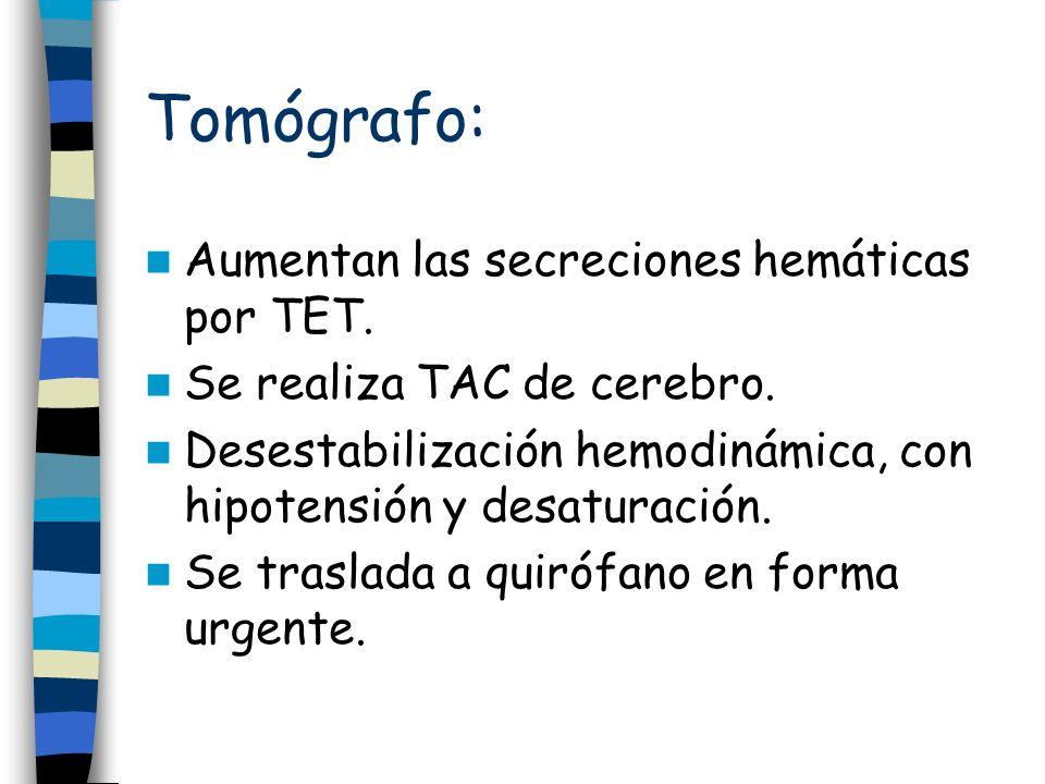Tomógrafo: Aumentan las secreciones hemáticas por TET.