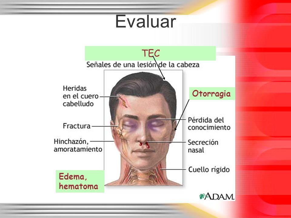 Evaluar TEC Otorragia Edema, hematoma