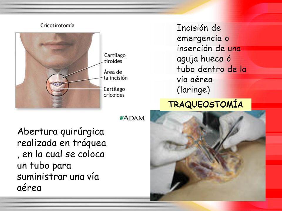 Incisión de emergencia o inserción de una aguja hueca ó tubo dentro de la vía aérea (laringe)