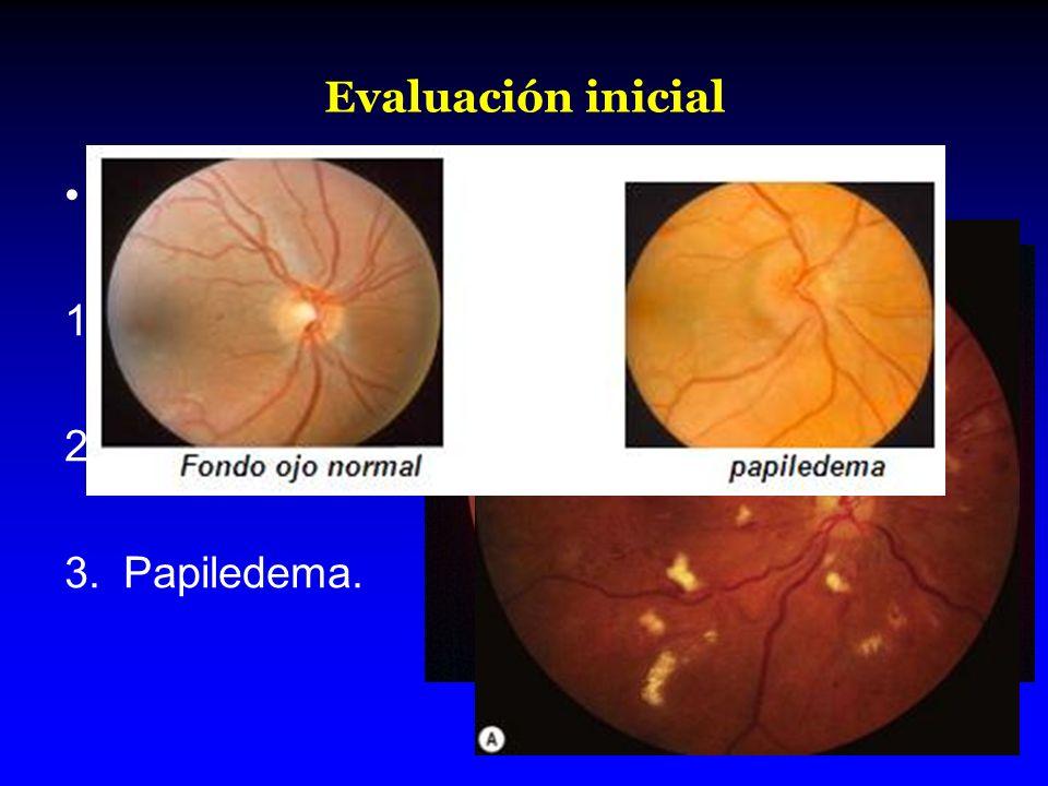 Evaluación inicial Sin utilizar midriáticos. Hemorragias. Exudados. Papiledema.