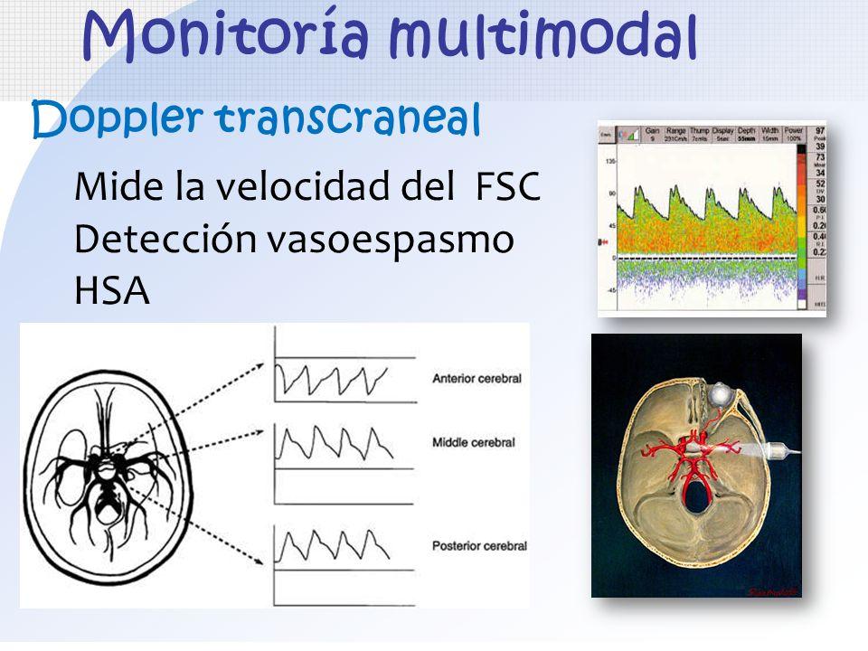 Monitoría multimodal Doppler transcraneal Mide la velocidad del FSC
