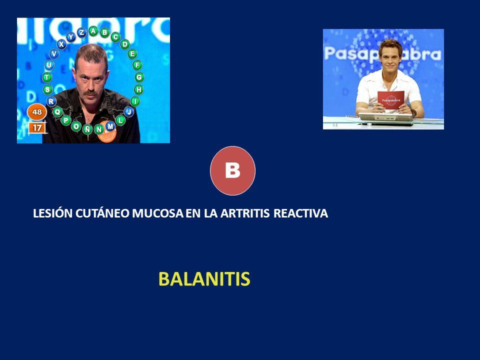 B LESIÓN CUTÁNEO MUCOSA EN LA ARTRITIS REACTIVA BALANITIS