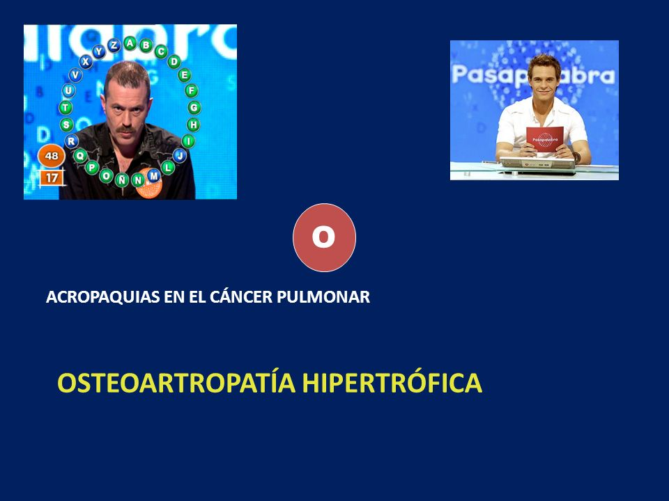 OSTEOARTROPATÍA HIPERTRÓFICA