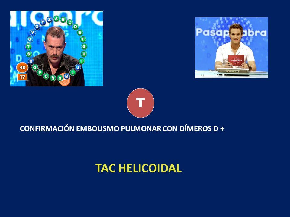 T CONFIRMACIÓN EMBOLISMO PULMONAR CON DÍMEROS D + TAC HELICOIDAL
