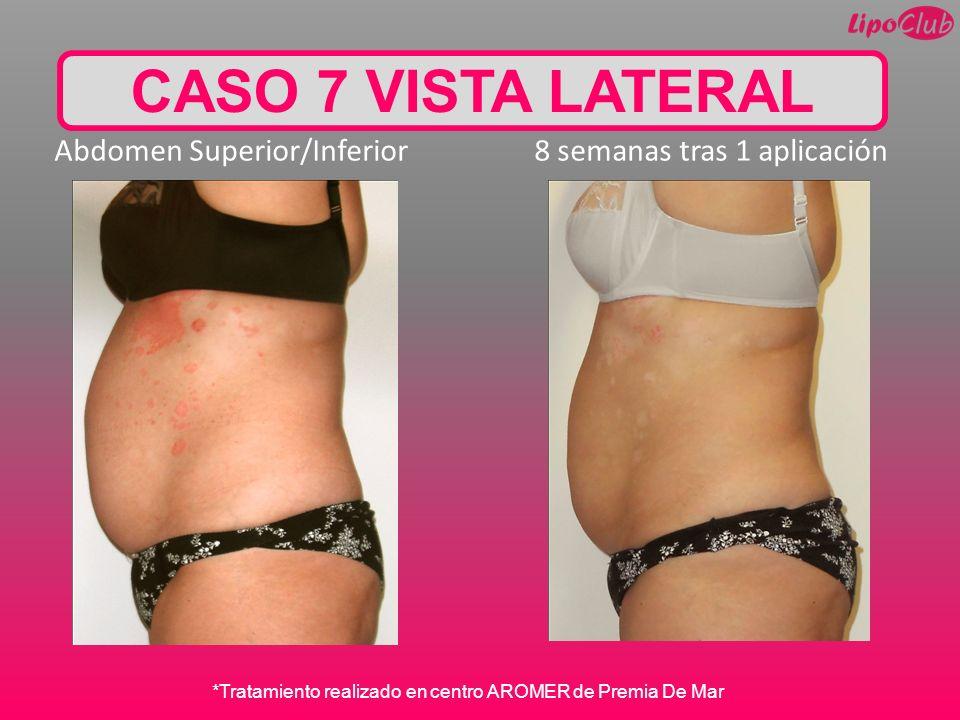 CASO 7 VISTA LATERAL Abdomen Superior/Inferior 8 semanas tras 1 aplicación.