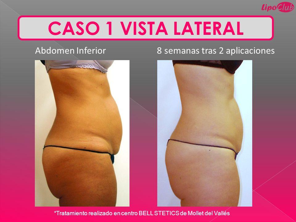 CASO 1 VISTA LATERAL Abdomen Inferior 8 semanas tras 2 aplicaciones