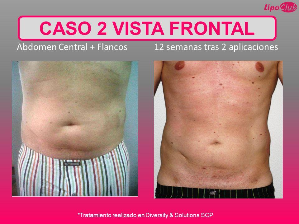 CASO 2 VISTA FRONTAL Abdomen Central + Flancos 12 semanas tras 2 aplicaciones.