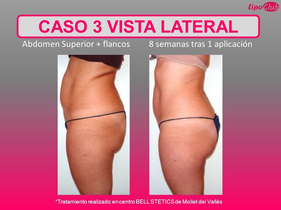 CASO 3 VISTA LATERAL Abdomen Superior + flancos 8 semanas tras 1 aplicación.