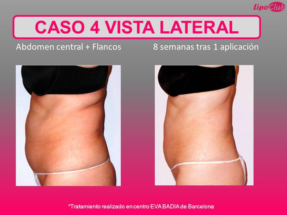 CASO 4 VISTA LATERAL Abdomen central + Flancos 8 semanas tras 1 aplicación.
