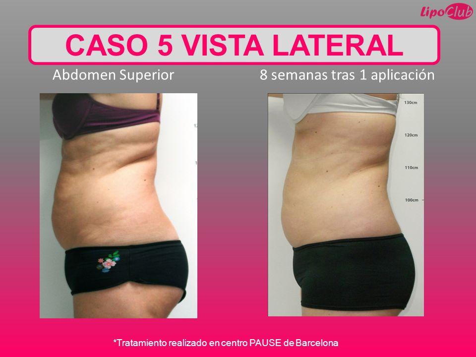 CASO 5 VISTA LATERAL Abdomen Superior 8 semanas tras 1 aplicación
