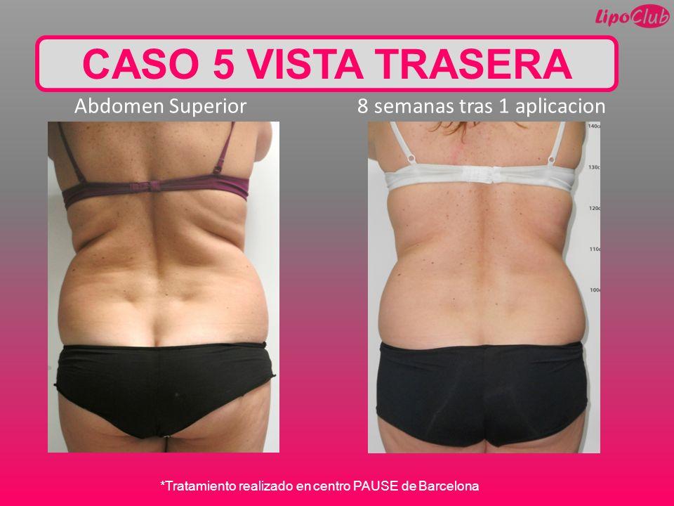 CASO 5 VISTA TRASERA Abdomen Superior 8 semanas tras 1 aplicacion