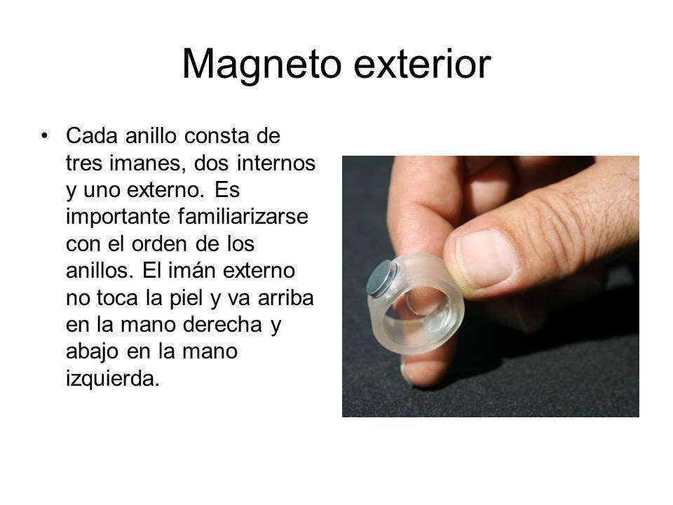 Magneto exterior
