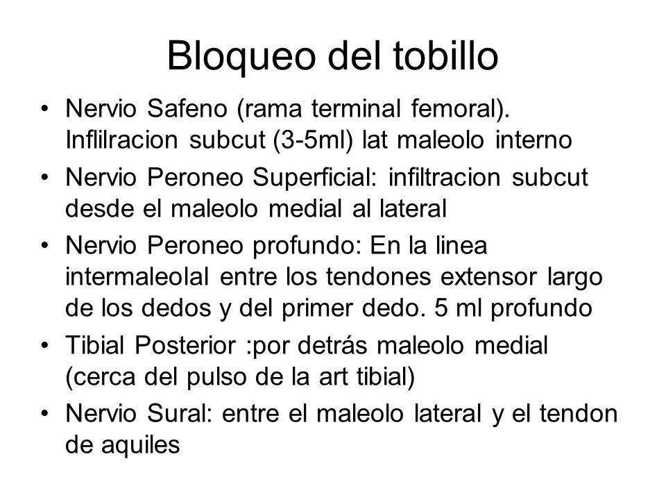 Bloqueo del tobillo Nervio Safeno (rama terminal femoral). Inflilracion subcut (3-5ml) lat maleolo interno.