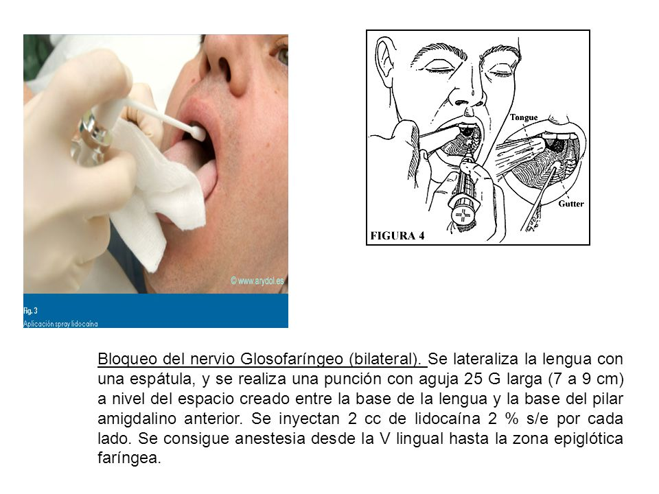 Bloqueo del nervio Glosofaríngeo (bilateral)