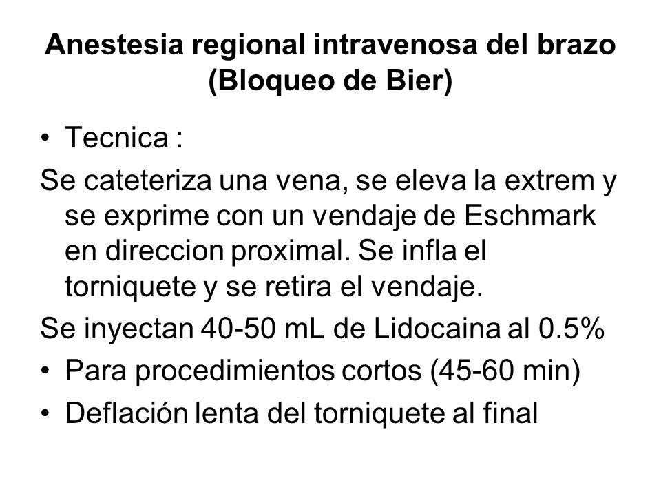 Anestesia regional intravenosa del brazo (Bloqueo de Bier)