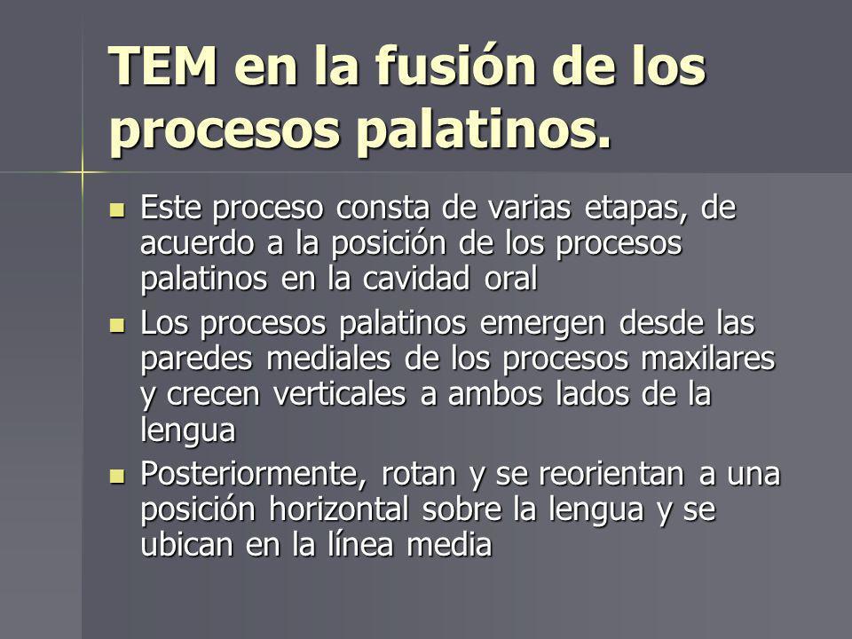 TEM en la fusión de los procesos palatinos.