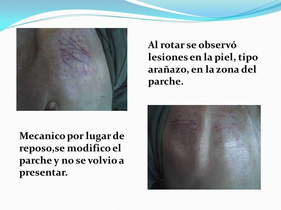 Al rotar se observó lesiones en la piel, tipo arañazo, en la zona del parche.