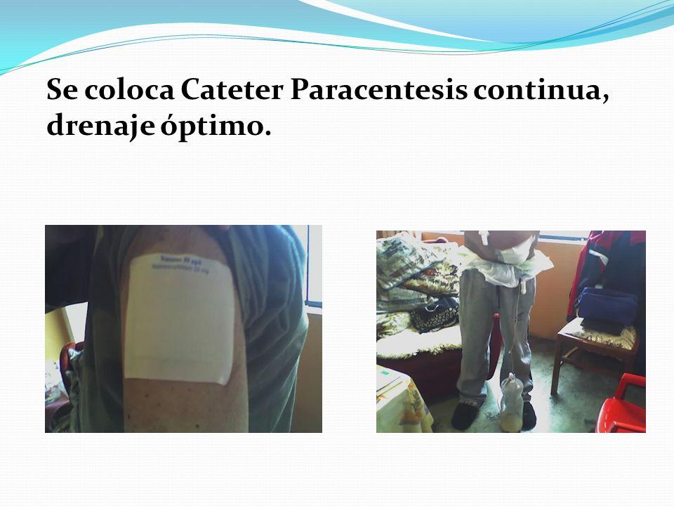 Se coloca Cateter Paracentesis continua, drenaje óptimo.