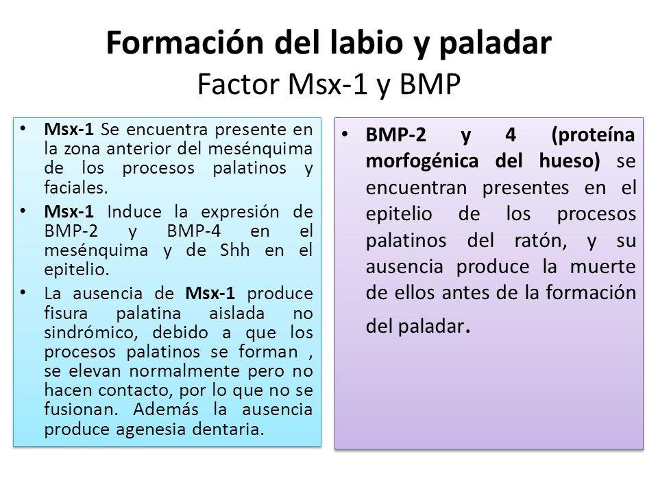Formación del labio y paladar Factor Msx-1 y BMP